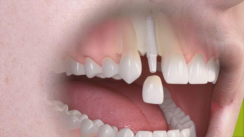 Cirkoniniai dantų implantai - norintiems turėti estetišką šypseną