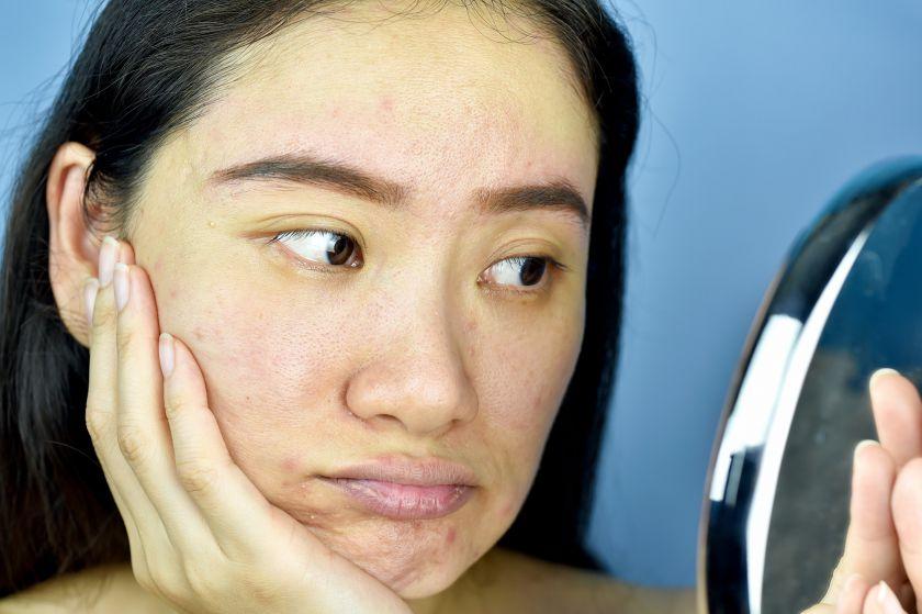 Dermatologė įspėja: sausas oras patalpose – sparčiai pradėjusios senti odos priežastis