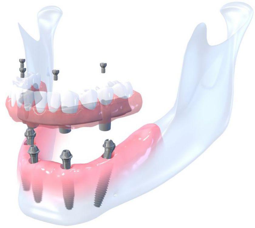 Prarasti dantys ir sunykęs kaulas - kaip išvengti sudėtingo gydymo?