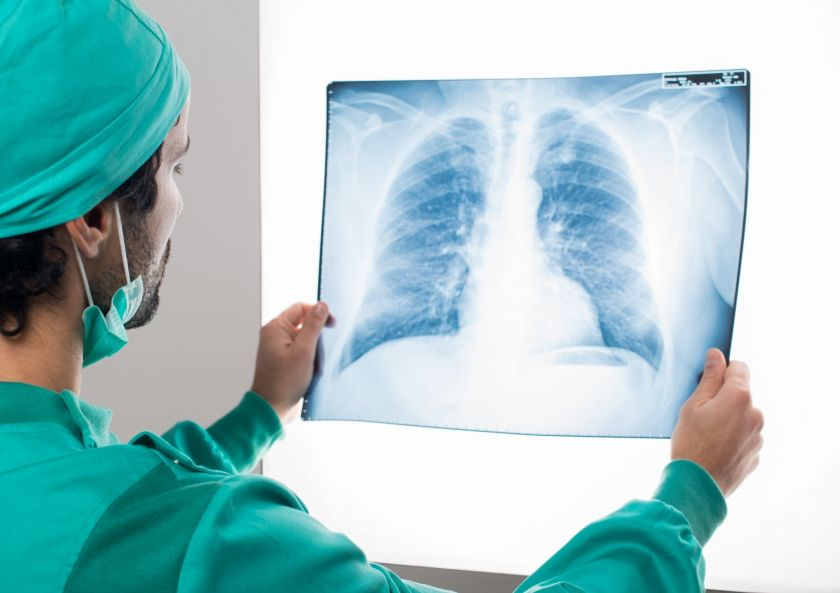 Plaučių transplantacija – išskirtinė ir labai laukiama operacija
